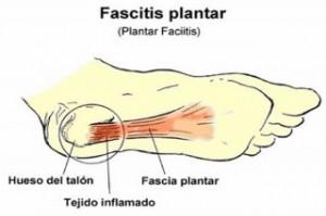 Fascitis plantar